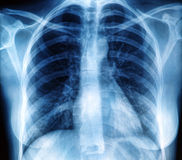Εικόνα θωρακικής ακτίνας X Στοκ εικόνα με δικαίωμα ελεύθερης χρήσης