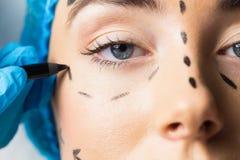 Ειρηνικός νέος ασθενής με τις διαστιγμένες γραμμές στο πρόσωπο Στοκ Εικόνες