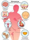 εμμηνόπαυση Στοκ Εικόνες