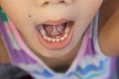 Ενήλικα μόνιμα δόντια που μπαίνουν πίσω από τα δόντια μωρών Στοκ φωτογραφία με δικαίωμα ελεύθερης χρήσης