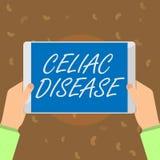 Εννοιολογικό χέρι που γράφει παρουσιάζοντας κοιλιακή ασθένεια Το λεπτό έντερο κειμένων επιχειρησιακών φωτογραφιών είναι υπερευαίσ απεικόνιση αποθεμάτων