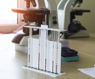 Εξέταση αίματος για ESR τα μικροσκόπια, την ιατρική και το αίμα, ιός nipah στοκ φωτογραφία με δικαίωμα ελεύθερης χρήσης