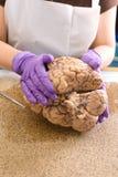 Εξέταση εγκεφάλου Στοκ εικόνα με δικαίωμα ελεύθερης χρήσης