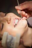 Εξέταση οδοντιάτρων Στοκ Εικόνες