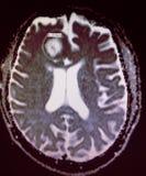 Εξέταση mri πονοκέφαλου μηνιγγιώματος εγκεφάλου στοκ εικόνες