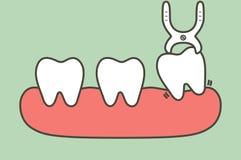 Εξαγωγή δοντιών από τα οδοντικά εργαλεία για να αφαιρέσει το δόντι φρόνησης διανυσματική απεικόνιση