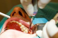 Εξαγωγή δοντιών χωρίς χρησιμοποίηση των λαβίδων Στοκ εικόνες με δικαίωμα ελεύθερης χρήσης