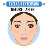 Επέκταση Eyelash Πριν και μετά από Κύριος Eyelash απεικόνιση αποθεμάτων