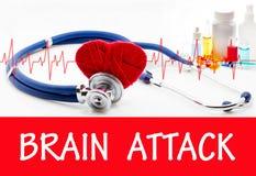 Επίθεση εγκεφάλου στοκ φωτογραφία