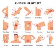 Επίπεδο σύνολο τραυματισμών απεικόνιση αποθεμάτων