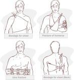 Επίδεσμος για το στήθος, σπάσιμο humerus, ulna σπάσιμο, επίδεσμος για το στήθος (ο Μαύρος ένα λευκό) απεικόνιση αποθεμάτων