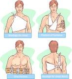 Επίδεσμος για το στήθος, σπάσιμο humerus, ulna σπάσιμο, επίδεσμος για το στήθος απεικόνιση αποθεμάτων