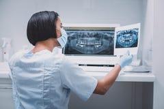 Επαγγελματικός νέος ιατρικός εργαζόμενος που εξετάζει την των ακτίνων X εικόνα στοκ εικόνες με δικαίωμα ελεύθερης χρήσης