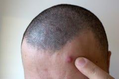 Επεξεργασία ακμής Άτομο ακμής που συμπιέζει το σπυράκι του, που αφαιρεί το σπυράκι από το πρόσωπό της Έννοια φροντίδας δέρματος α στοκ φωτογραφία