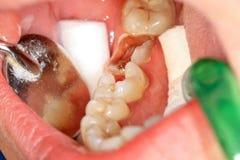 Επεξεργασία δοντιών στοκ εικόνα με δικαίωμα ελεύθερης χρήσης
