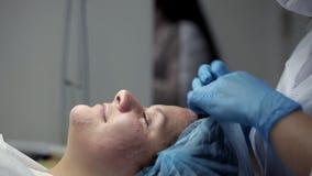Επεξεργασία προσώπου μετά από μια μηχανική διαδικασία καθαρισμού προσώπου απόθεμα βίντεο