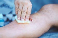 Επεξεργασία της πληγής στο ανθρώπινο πόδι με το ιώδιο στοκ φωτογραφία με δικαίωμα ελεύθερης χρήσης