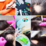 Επεξεργασία της φαλάκρας με τις εγχύσεις ομορφιάς Το Cosmetologist παραδίδει τα γάντια κάνει μια υποδόρια έγχυση Plasmalifting στοκ εικόνα