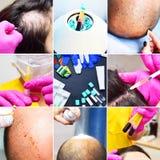 Επεξεργασία της φαλάκρας με τις εγχύσεις ομορφιάς Το Cosmetologist παραδίδει τα γάντια κάνει μια υποδόρια έγχυση Plasmalifting στοκ φωτογραφία