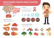 Επεξεργασμένα κρέατα και καρκίνος Ένα άτομο που τρώει τα επεξεργασμένα κρέατα Αντικαρκινικά τρόφιμα Στοκ Εικόνες