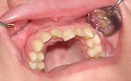 Επιβάρυνση των δοντιών Στοκ εικόνες με δικαίωμα ελεύθερης χρήσης