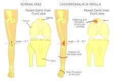 Επιγονατίδα πόνου και chondromalacia γονάτων Στοκ Εικόνα