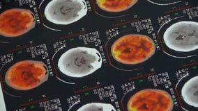 Επικεφαλής & σπονδυλικό Pet-CT χρώματος μελέτης γιατρών, ακτίνα X εγκεφάλου κρανίων απόθεμα βίντεο