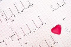 Επισήμανση EKG της ισχαιμικής καρδιάς στοκ εικόνες με δικαίωμα ελεύθερης χρήσης