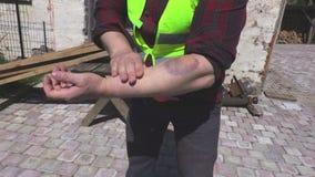 Εργαζόμενος με τον τραυματισμό βραχιόνων