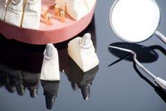 εργαλεία οδοντιάτρων Στοκ φωτογραφίες με δικαίωμα ελεύθερης χρήσης