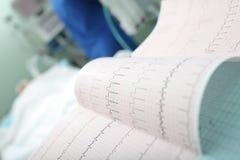Ερμηνεία ECG στην εντατική παρακολούθηση Στοκ Εικόνα