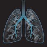 εσωτερικός καπνός πνευμό&n Στοκ Φωτογραφία