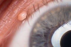 Ετικέττα δερμάτων στη γραμμή Eyelash, έξοχη μακροεντολή στοκ εικόνα με δικαίωμα ελεύθερης χρήσης