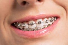 Ευτυχές χαμόγελο επιτυχίας με τα τέλεια δόντια και τα στηρίγματα στοκ εικόνες
