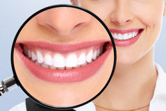 λεύκανση δοντιών Στοκ φωτογραφία με δικαίωμα ελεύθερης χρήσης