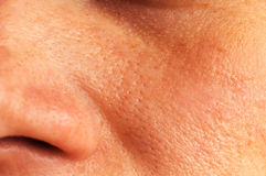 Ελαιούχο δέρμα στο πρόσωπο Στοκ Φωτογραφίες
