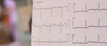 Ηλεκτροκαρδιογράφημα για το ανιχνευμένο ανώμαλο ποσοστό καρδιών στους ασθενείς που έχει τον κλινικό θωρακικό πόνο στη εντατική στ Στοκ εικόνα με δικαίωμα ελεύθερης χρήσης