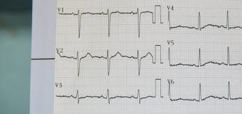Ηλεκτροκαρδιογράφημα για το ανιχνευμένο ανώμαλο ποσοστό καρδιών στους ασθενείς που έχει τον κλινικό θωρακικό πόνο στη εντατική στ Στοκ Φωτογραφία