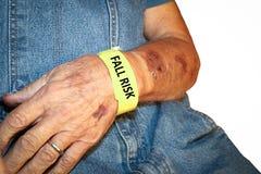 Ηλικιωμένο άτομο που φορά το βραχιόλι κινδύνου πτώσης με τους μώλωπες στοκ φωτογραφία