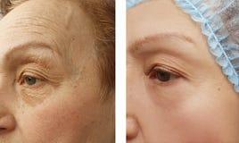 Ηλικιωμένο πρόσωπο γυναικών ρυτίδων πριν και μετά από τις καλλυντικές διαδικασίες, θεραπεία, αντι-γήρανση στοκ φωτογραφίες