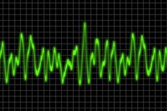 ηχητικά κύματα Στοκ φωτογραφία με δικαίωμα ελεύθερης χρήσης