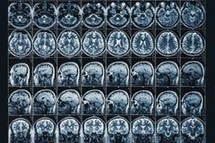 Η ακτίνα X ή MRI ανιχνεύουν ή η εικόνα τομογραφίας μαγνητικής αντήχησης του ανθρώπινου εγκεφάλου και επικεφαλής στενού επάνω, ένν στοκ φωτογραφίες