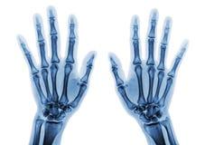 Η ακτίνα X ταινιών και το δύο AP χεριών παρουσιάζει κανονικά ανθρώπινα χέρια στο άσπρο background& x28  & x29  Στοκ Εικόνα
