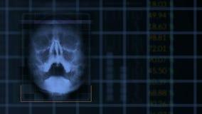 Η ανίχνευση ενός ανθρώπινου κρανίου, περιτυλίχτηκε μπλε ιατρικός εξοπλισμός διεπαφών hud φιλμ μικρού μήκους