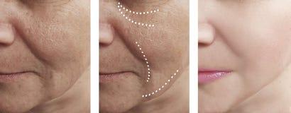 Η αφαίρεση ρυτίδων δερμάτων γυναικών πριν από τη διαφορά αναγέννησης μετά από cosmetology κολάζ τις επεξεργασίες αναγέννησης αντι στοκ εικόνες
