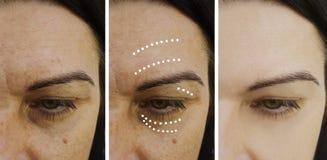 Η γυναίκα ζαρώνει πριν και μετά από την ανύψωση των διαδικασιών θεραπείας στοκ εικόνα
