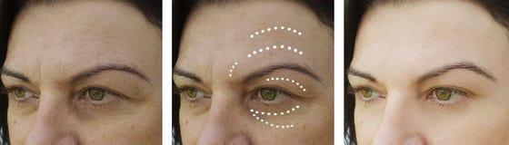 Η γυναίκα ζαρώνει πριν και μετά από τη διόρθωση οδηγεί διαδικασίες θεραπείας ανύψωσης στοκ φωτογραφία