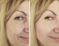Η γυναίκα ζαρώνει πριν και μετά από τη θεραπεία, γηράσκων τις θεραπείες biorevitalization διαδικασίας στοκ εικόνα με δικαίωμα ελεύθερης χρήσης
