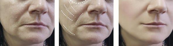 Η γυναίκα ζαρώνει πριν και μετά από τις επεξεργασίες αναζωογόνησης χειρούργων επεξεργασίας στοκ φωτογραφία