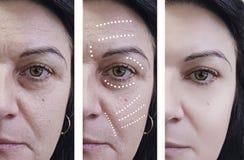 Η γυναίκα ζαρώνει πριν και μετά από τις επεξεργασίες αναζωογόνησης χειρούργων στοκ φωτογραφία